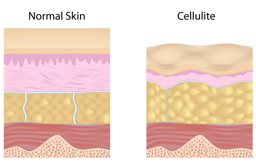 Cellulite versus smooth skin unlabeled